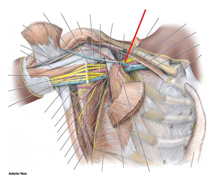 Anatomy Session 6 Brachial Plexus Msk I Flashcards Memorang
