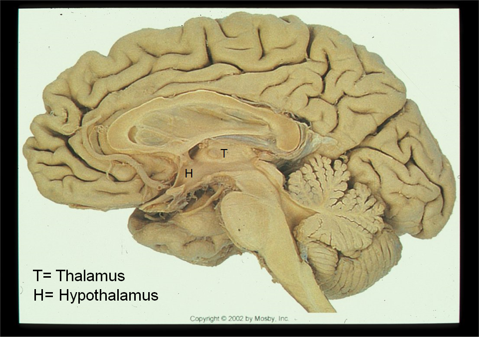 Hypothalamus (Neuroscience exam 2) Flashcards | Memorang