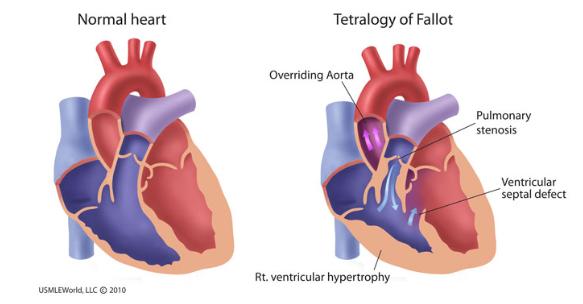 Uworld Step 1 Cardiology Cardiac Pathology Set 5 Flashcards