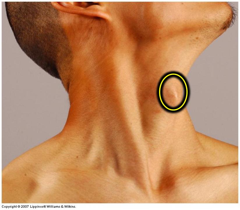 1.10 - Larynx & Thyroid (Anatomy, Robert DePhilip, PhD) Flashcards ...