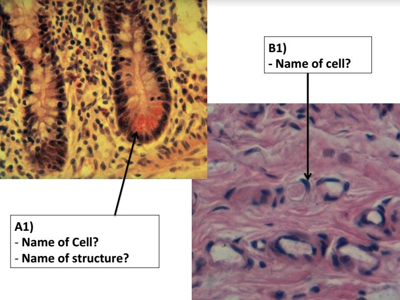 Histology Slides (test) (Anatomy II ) Flashcards   Memorang