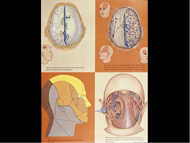 Bb week 5 migraine flashcards memorang cranial sinuses arteriesveins parts of the dura mater around large ccuart Images