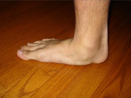 Профессор Неумывакин лечение грибка ногтей на ногах