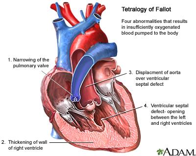 Pp Cardiology Cardiology Flashcards Memorang