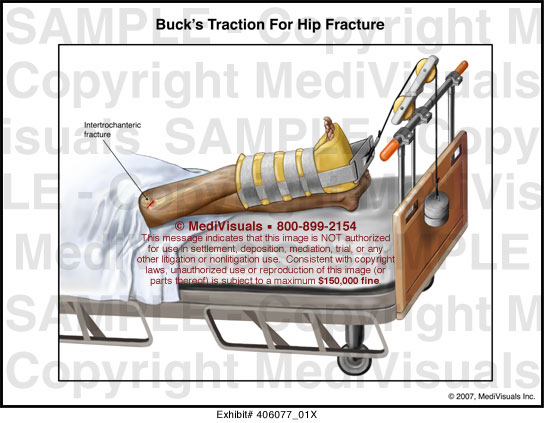bucks traction nursing care