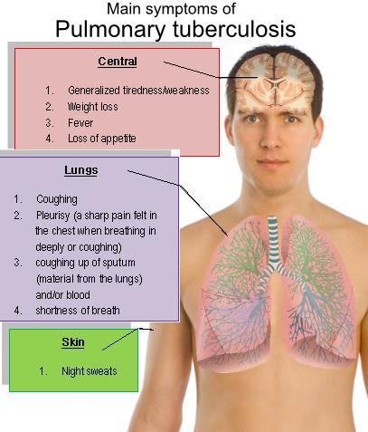 the causes and treatment of the disease of tuberculosis Tuberculosis - an easy to understand guide covering causes, diagnosis, symptoms, treatment and prevention plus additional in depth medical information.