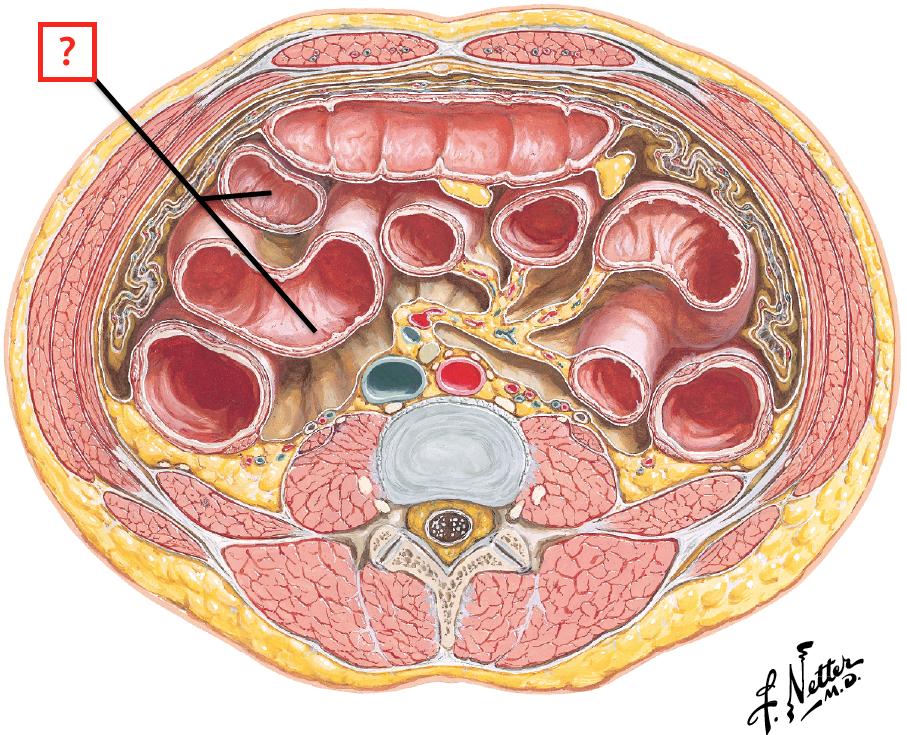 Cross Section of Abdomen at L3-L4 (MRI Type View) Flashcards   Memorang