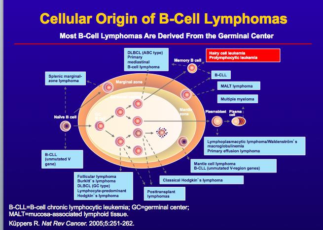 Lymphoproliferative disorders non hodgkins lymphoma hodgki for Home node b architecture