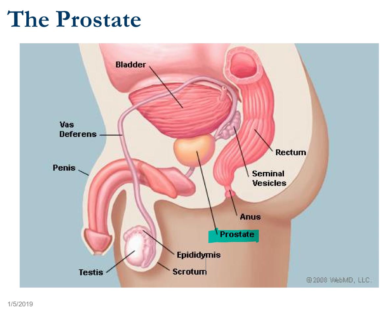 Cbcl Prostate Cancer Rsd 5 Flashcards Memorang