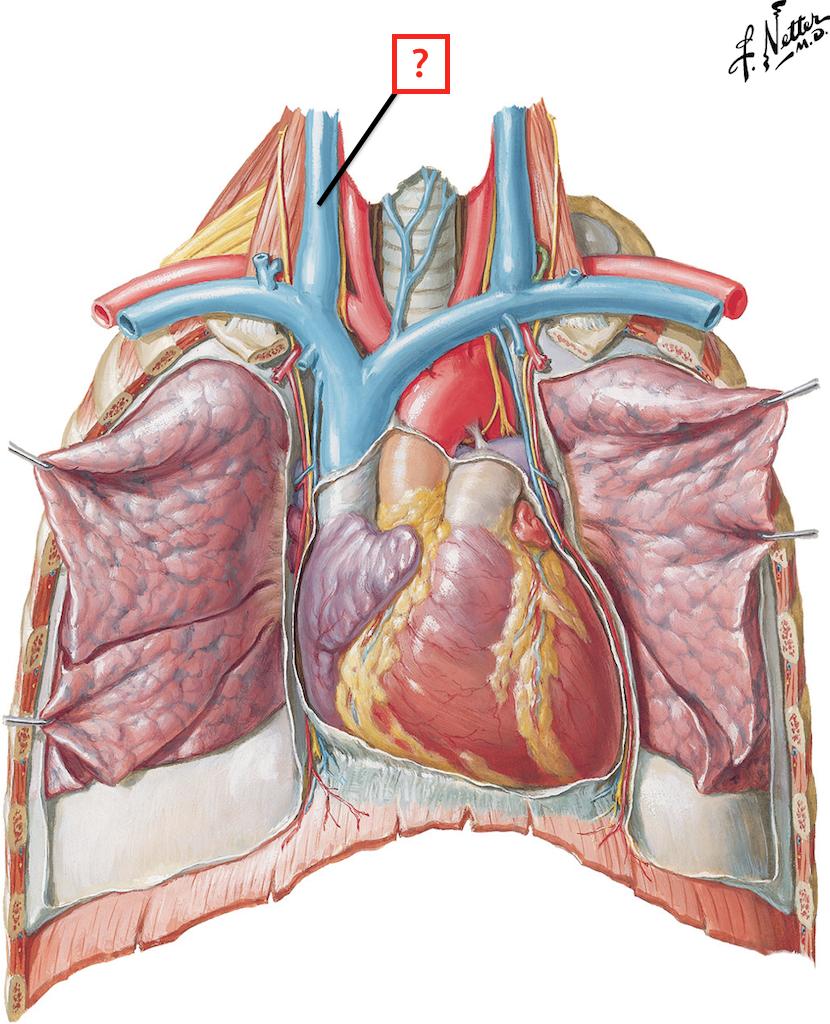 Heart: Anterior Exposure Flashcards | Memorang