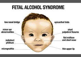 fetal alcohol syndrome 3 essay Fetal alcohol syndrome is a group of conditions that result from a mother's alcohol consumption while pregnant read about symptoms, prevention, and treatment of fas.