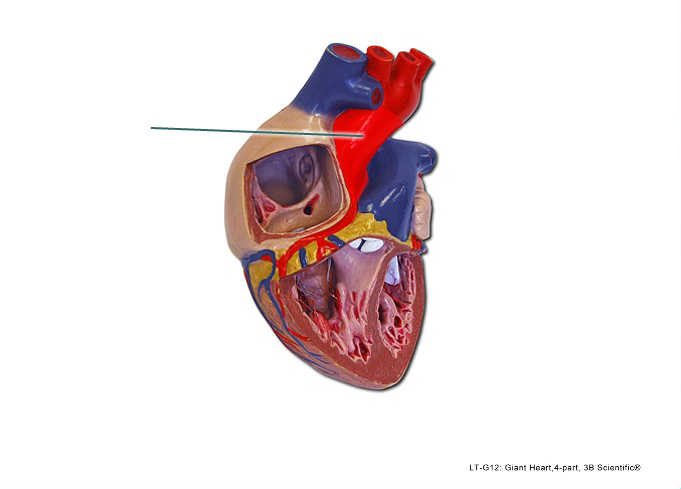 Lab Exercise The Heart Anatomy Flashcards Memorang