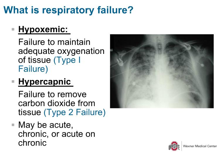 1 28 Respiratory Failure Exline Flashcards