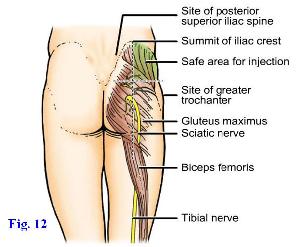 Buttock Injection Site: Unit 3 Glutes And Posterior Thigh (Unit 3 Lab 8