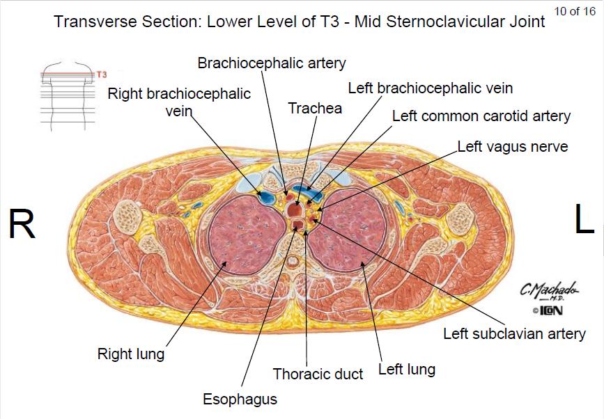 Anatomy: Thorax Cross-section Flashcards | Memorang