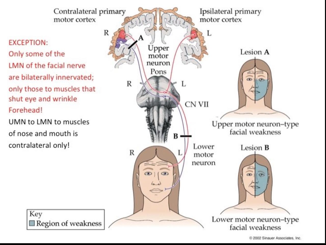 Upper Motor Neuron 7th Nerve Palsy Impremedia Net