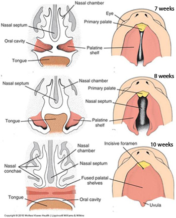 Craniofacial Development / Tongue / Palate (Anatomy Embryology ...