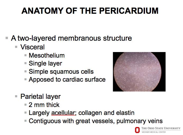 2-18, Pericardial Disease (Lilly) Flashcards   Memorang
