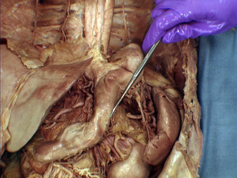 Gross Anatomy Abdominal Viscera Gross Anatomy Abdominal Viscera
