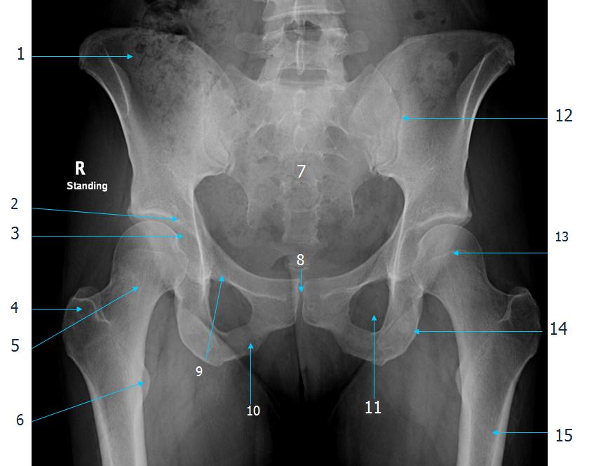 Hip Knee Ankle Radiology 2 Gross Anatomy Exam 3 Flashcards