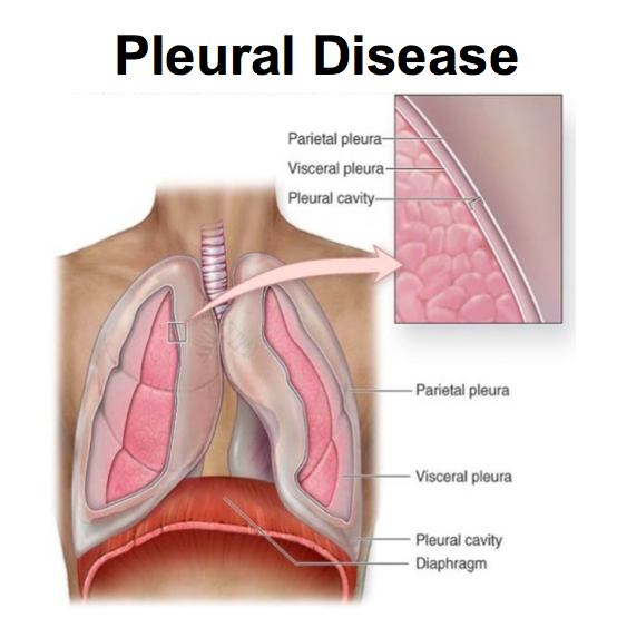 2 3 Pleural Disease Hitchcock Flashcards Memorang