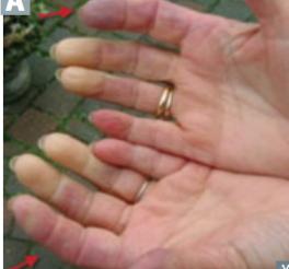 Step 1: MSK/skin (pop deez facts) Flashcards   Memorang