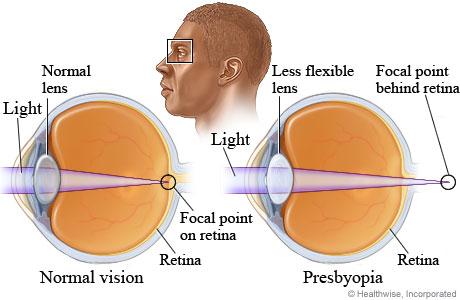 Visual Disturbances Nclex Pn Sensory And Perceptual Alterations