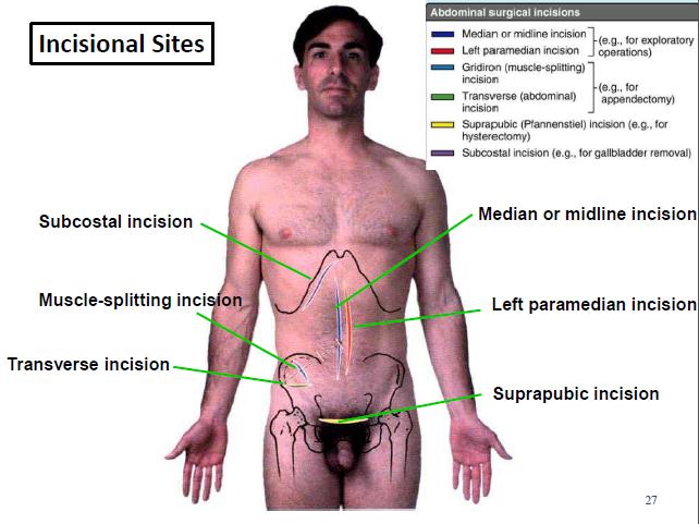 Anterior Abdominal Wall and Surface Anatomy Flashcards | Memorang