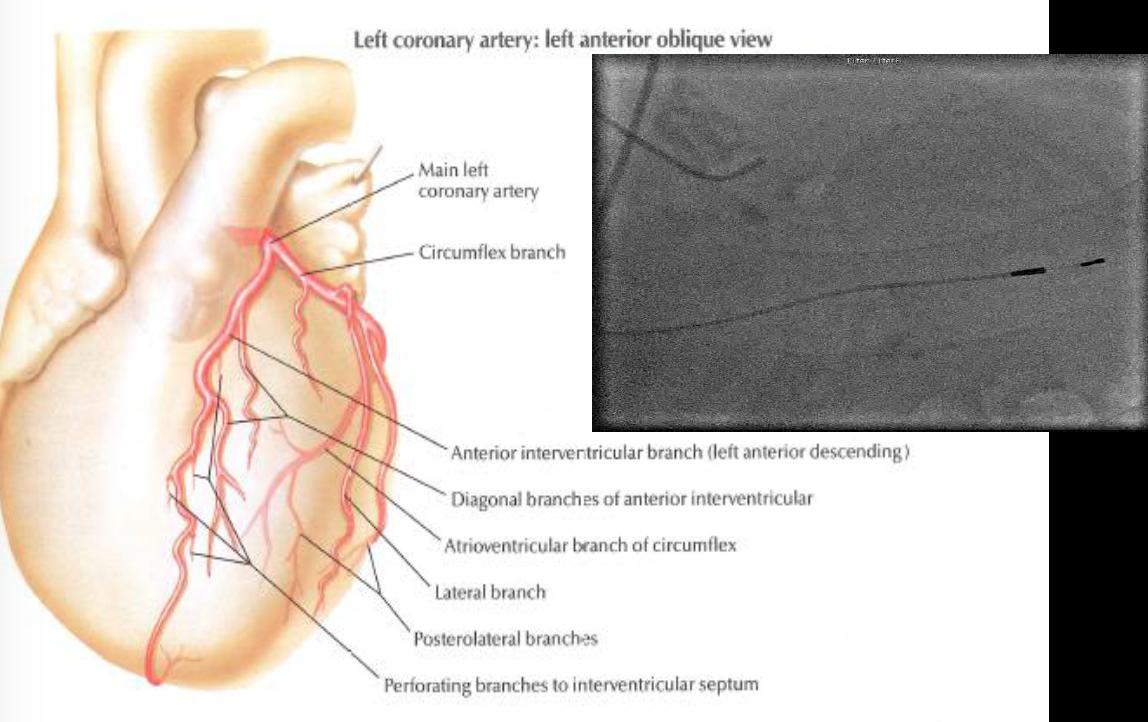Applied Anatomy of the Cardiovascular System 8/21 (Cardio ...