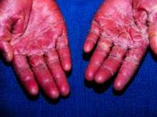 Symptoms strep b infection adults