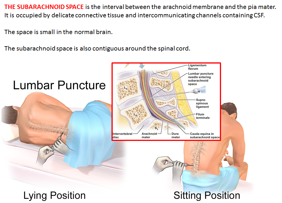 Nice Anatomy Of Lumbar Puncture Ornament - Anatomy And Physiology ...