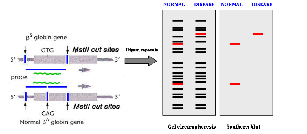 sickle cell anemia gel electrophoresis