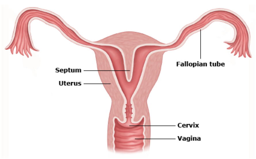 Benign Conditions Of Uterus Cervix Ovary Fallopian Tube Repro
