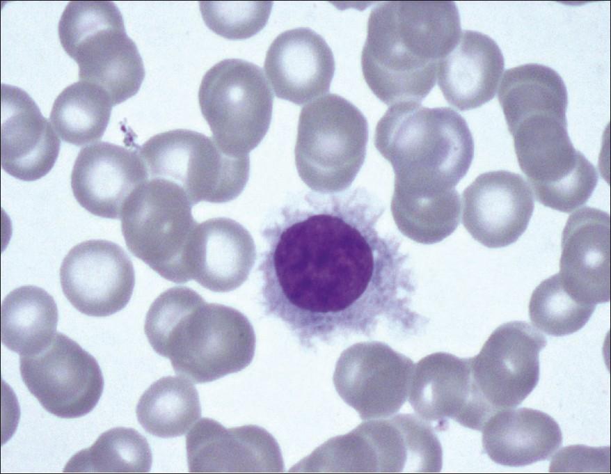 Mefloquine macular degeneration