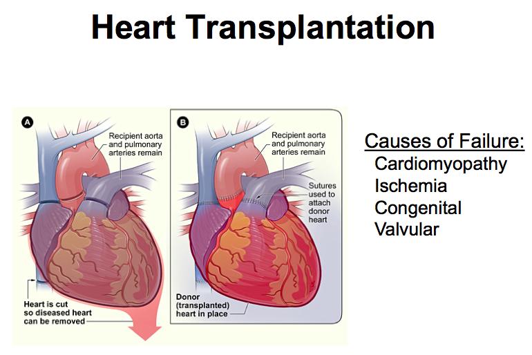11 28 immunology of transplantation pelletier host flashcards cardiomyopathy ischemia congenital valvular ccuart Choice Image