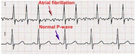 ecg-atrial-fibrillation.PNG