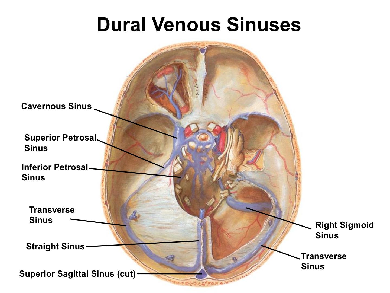 Gro Sigmoid Sinus Anatomy Fotos Menschliche Anatomie Bilder