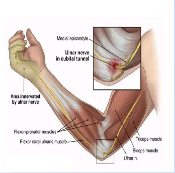 MSK Conditions - Wk 3 (Elbow, wrist, forearm) Flashcards | Memorang
