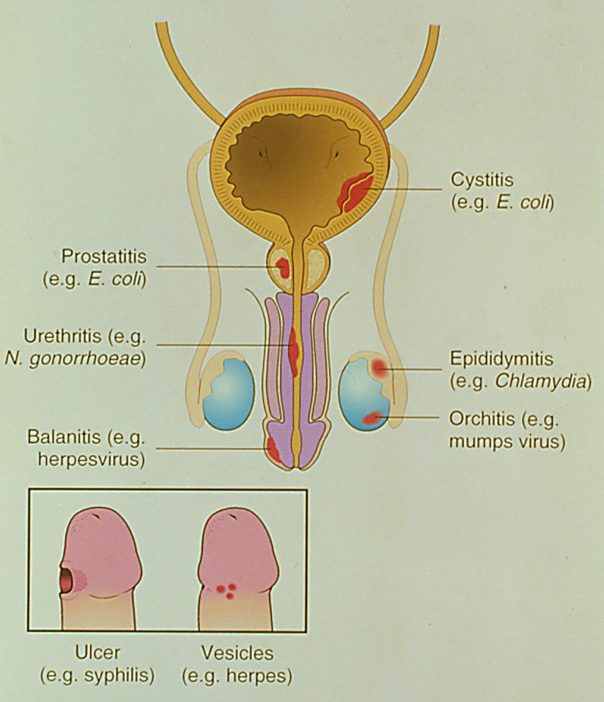 prostatitis epididymitis and urethritis