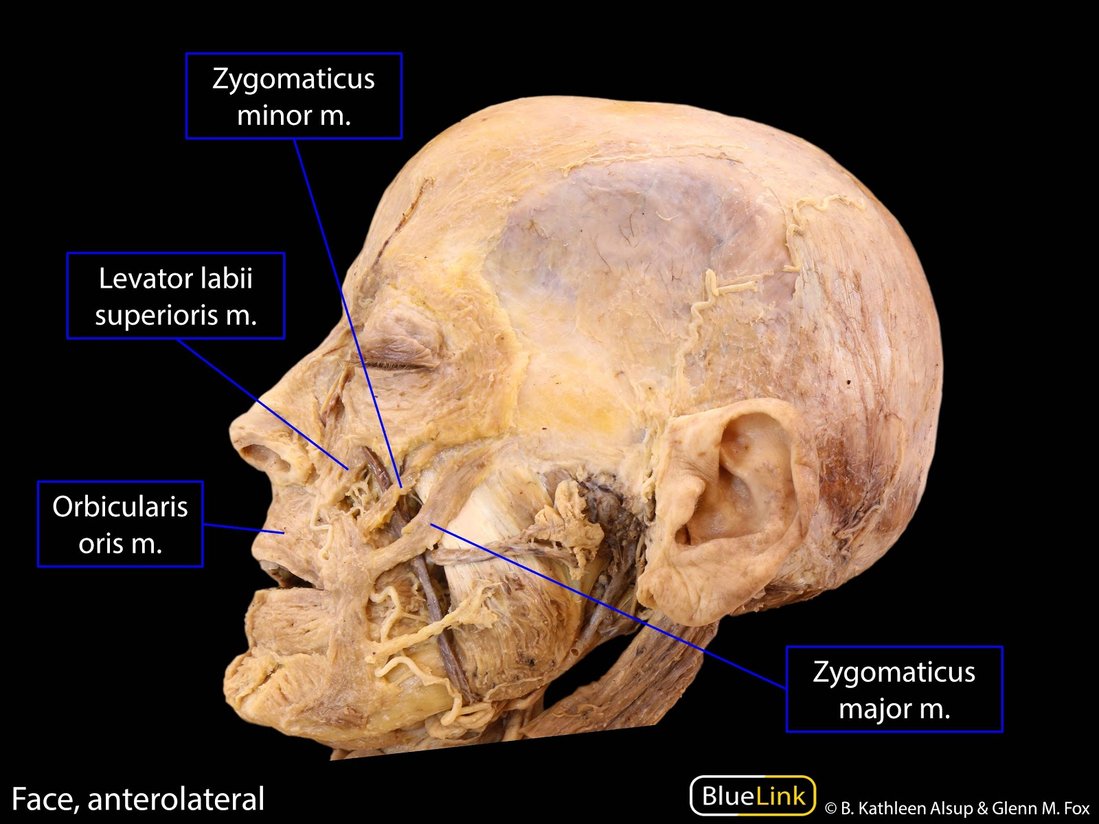 Head And Neck Anatomy Muscles Of Facial Expression Only On Muscles