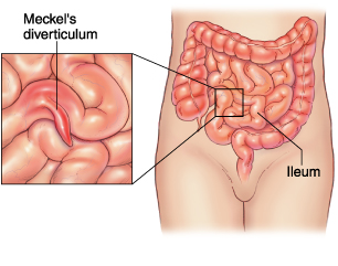 Gastrointestinal Bleeding (NBME Pediatrics Shelf Exam