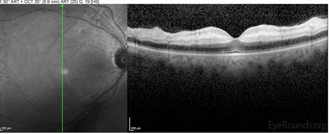OCT Thickened And Hyper Reflective Inner Retinal Layers Intracellular Edema Outer Retina