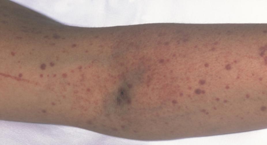 Dermatological Manifestations of Systemic Disease