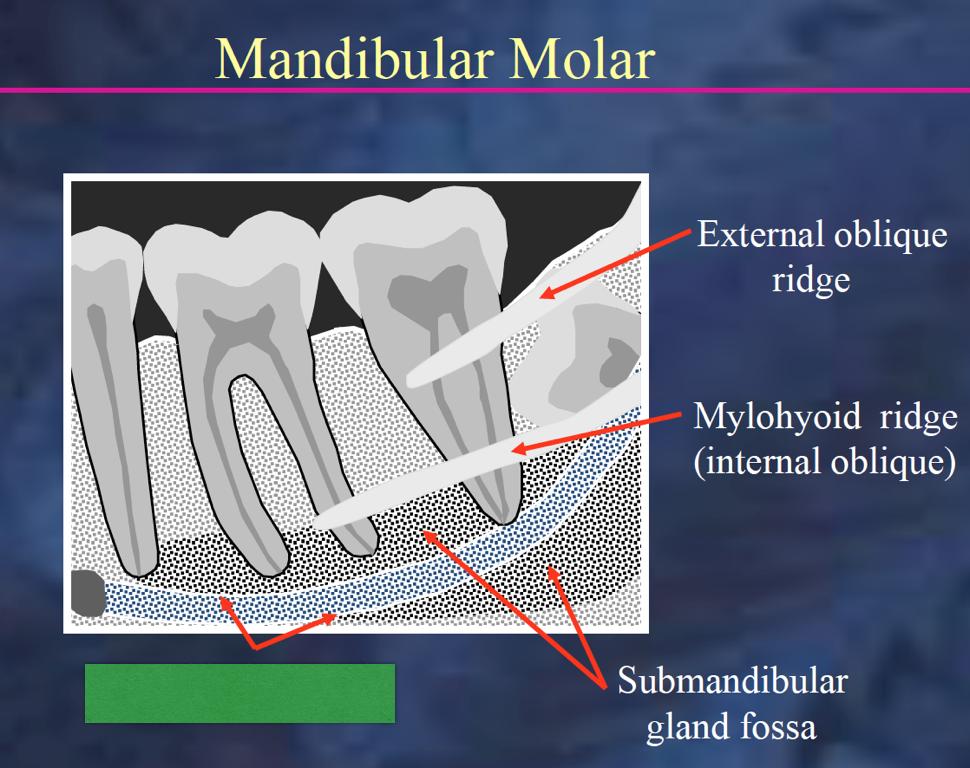 Intra-oral Radiographic anatomy of mandible (Radiology) Flashcards ...