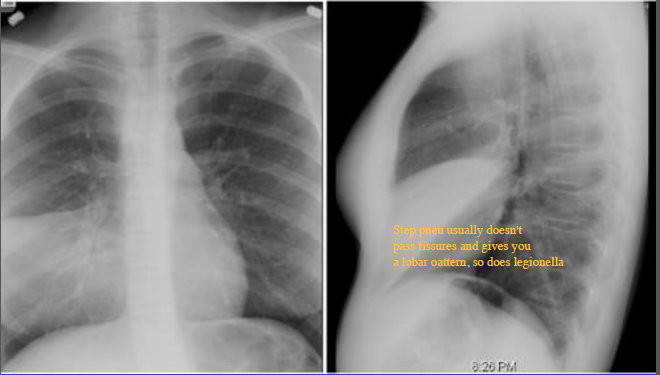 respiratory imaging respiraory chest x rays and cts flashcards