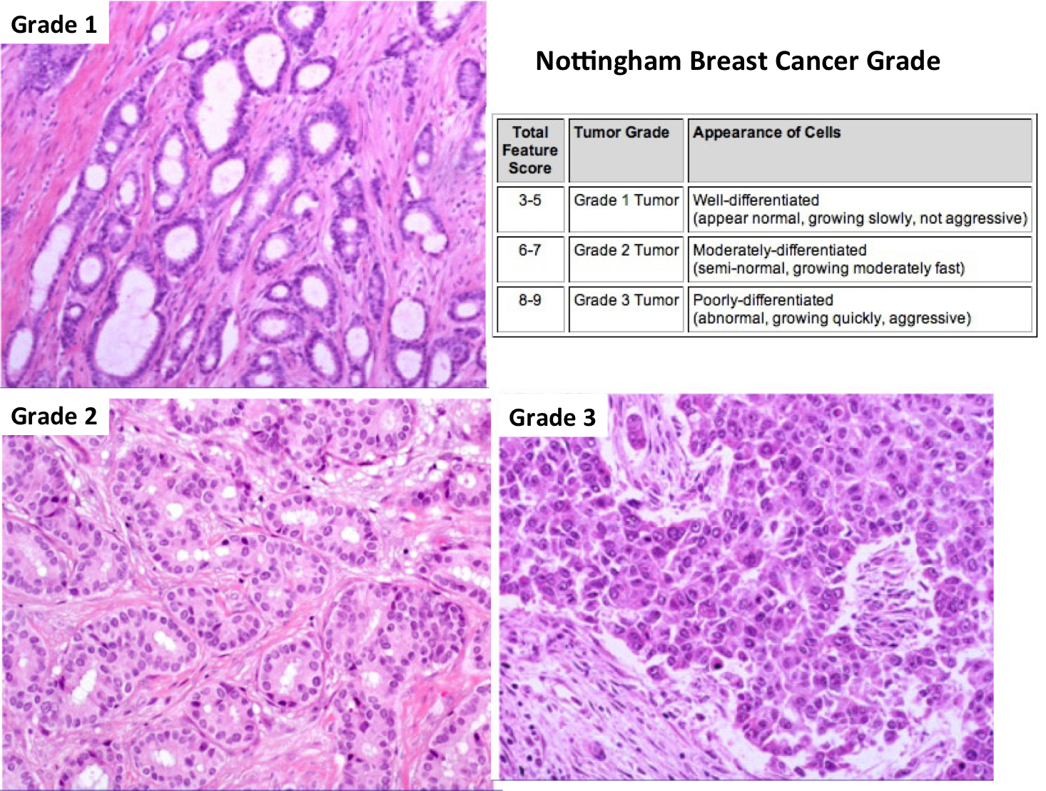 Grading of breast cancer tumors