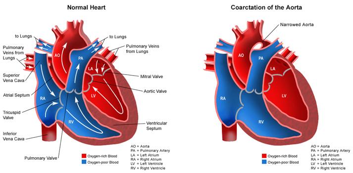 Congenital Heart Anomalies Nclex Rn Fluid Electrolyte
