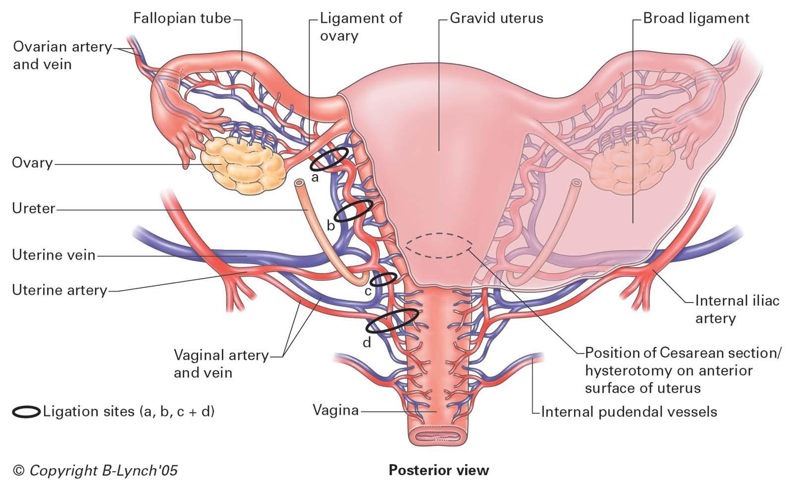 MS3 GYN: Dodson - Anatomy & Surgery Flashcards | Memorang