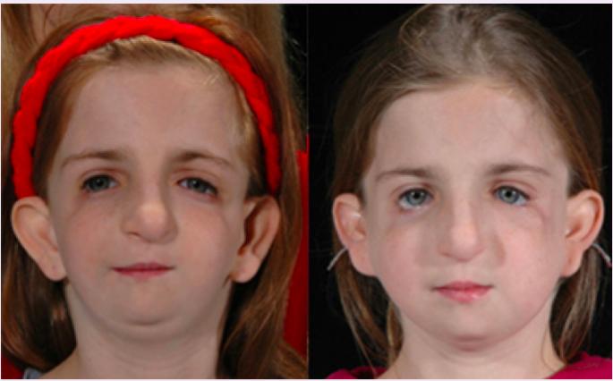 Derm Lecture 16: Craniofacial Malformations (Derm