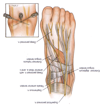 Surgical Skills 2 (Surgical Skills) Flashcards | Memorang
